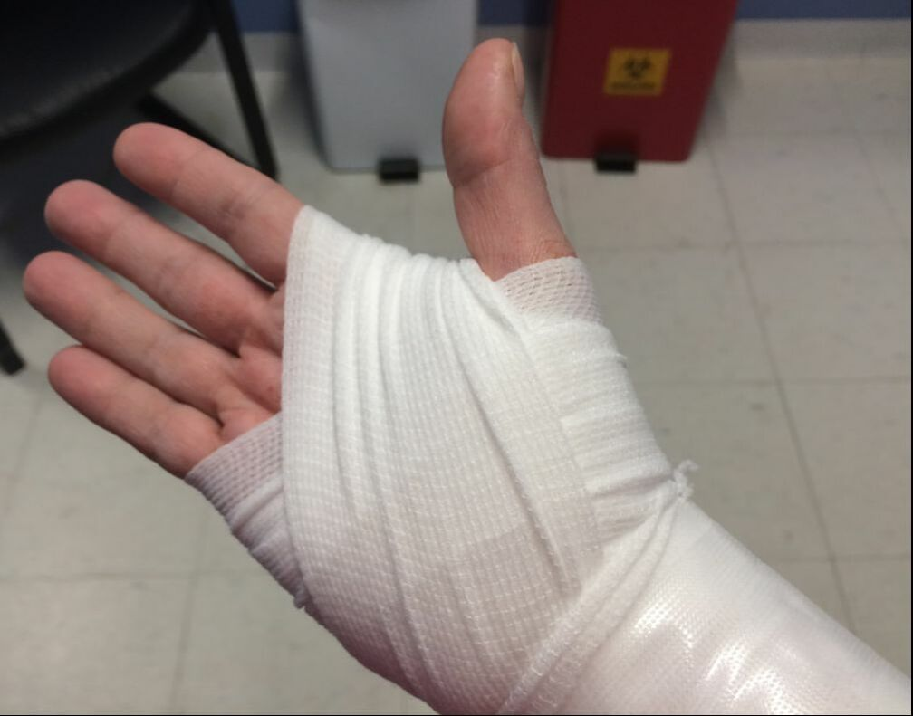Image description: The palm side of a right hand, thoroughly bandaged to the wrist.
